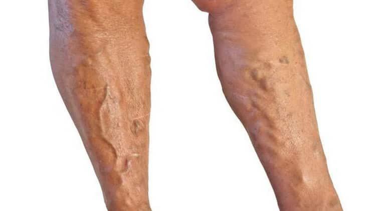 тромбоз глубоких вен нижних конечностей^ лечение b симптомы