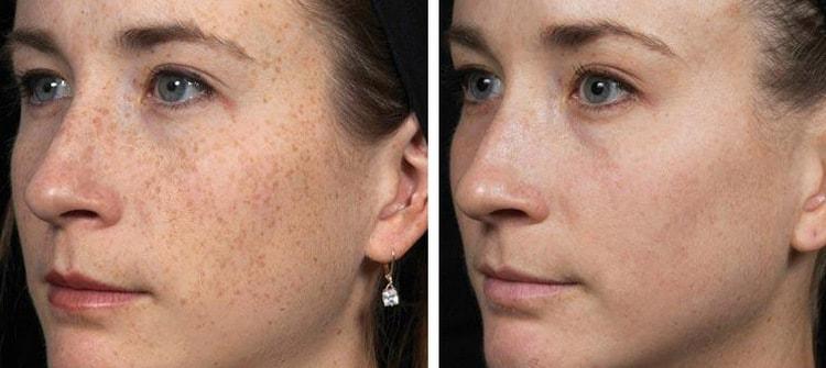 огуречная маска помогает избавиться и от пигментации.