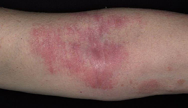 Лечебные свойства гортензии позволяют использовать ее при лечении дерматитов.