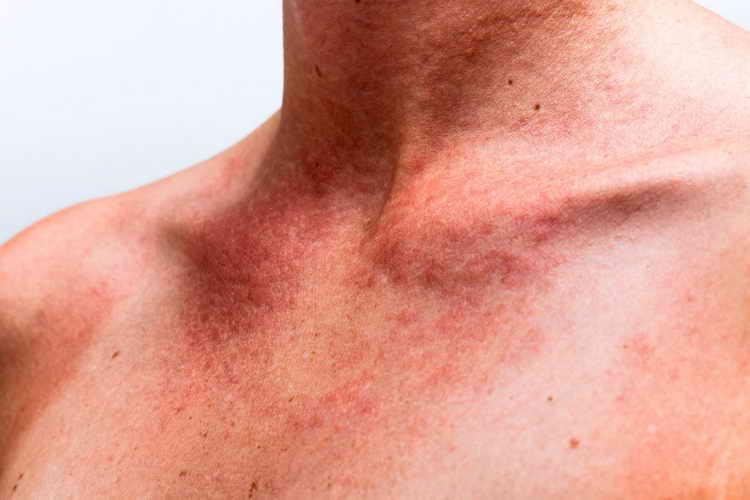 Аллергическая уртикария