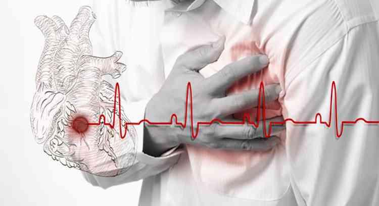 Авокадо поможет избежать инфаркта