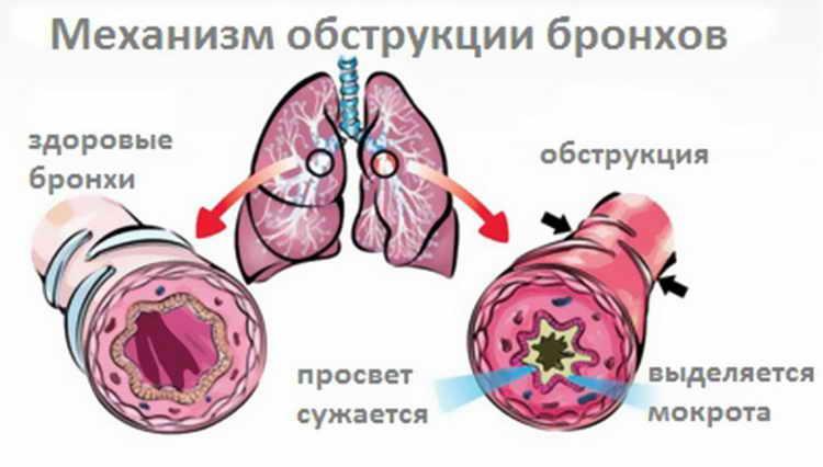 воспаление легких лечение народными средствами