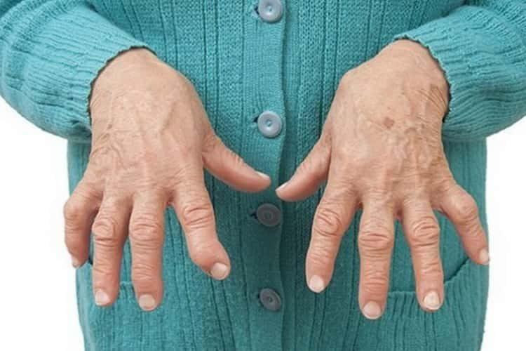 Все о симптомах и лечении полиартрита
