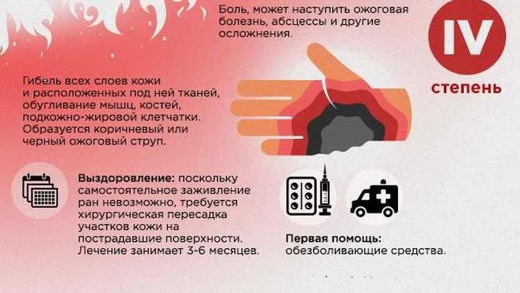 первая помощь при термическом ожоге 4 степени