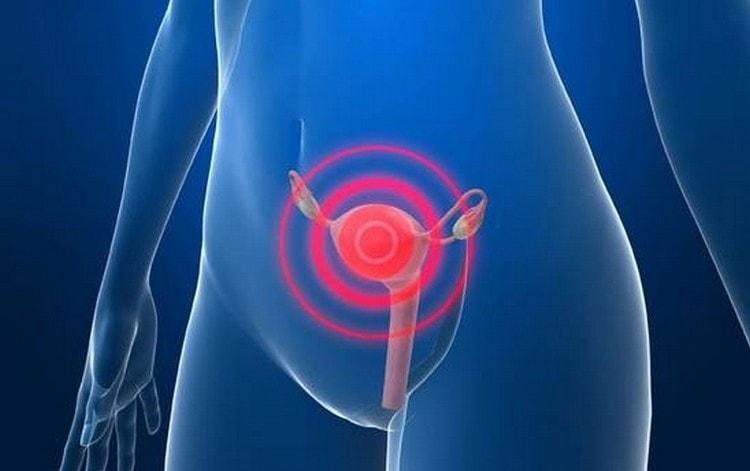 Лечебные свойства спорыша активно используются в гинекологии.