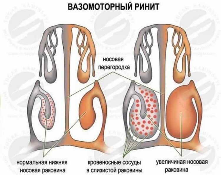 нейродермит фото симптомы и лечение