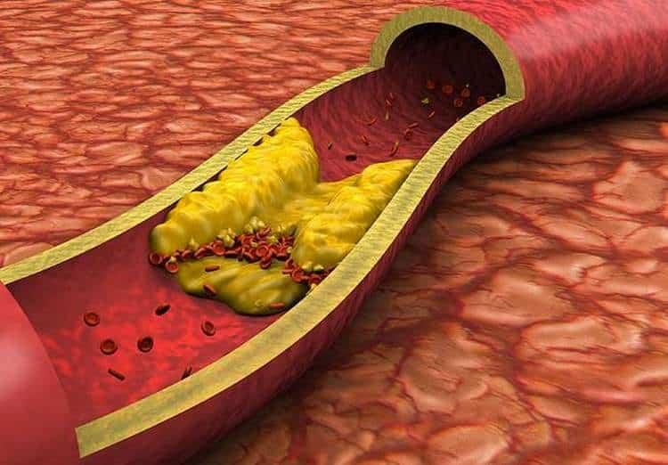 Рябина используется для профилактики и лечения атеросклероза.