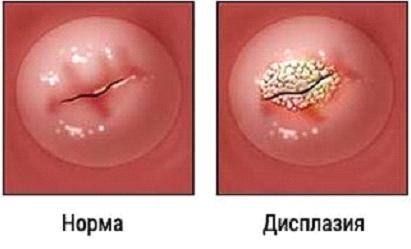 Дисплазия матки