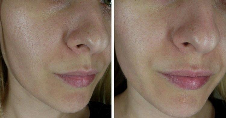 Почитайте отзывы о применении очищающих масок для лица.