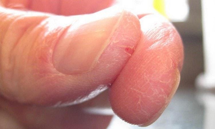 Для лечения трещины на пальце руки около ногтя применяют народные средства.