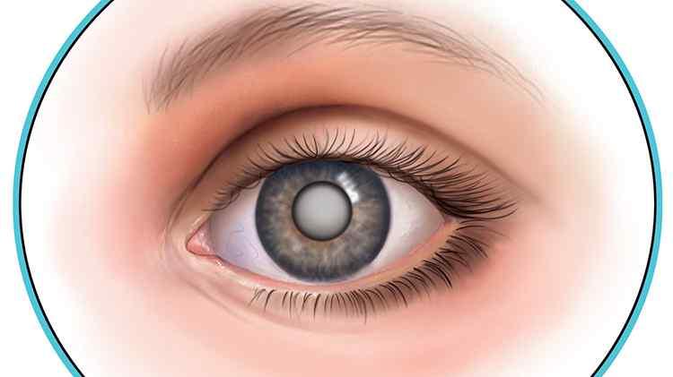 Ройбуш поможет вылечить катаракту