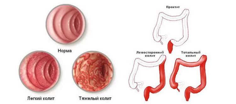 воспаление кишечника симптомы и лечение