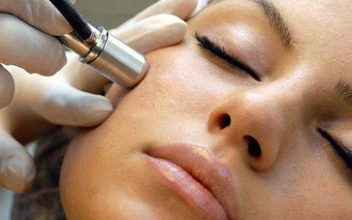 Удаление лазером на лице
