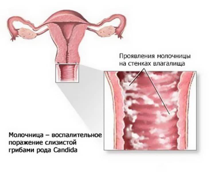 Кубышка при лечении молочницы