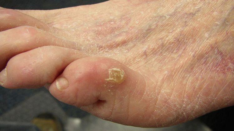 Особого лечения требуют натоптыши на ступнях со стержнем.