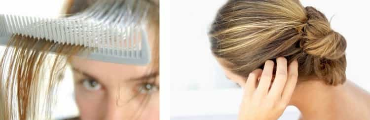Все о причинах, симптомах и лечении себореи кожи головы