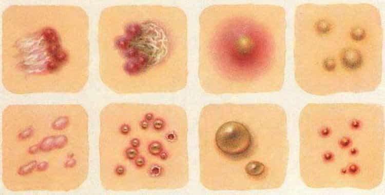 Высыпания на коже у взрослых в виде красных пятен с зудом: лечение народными средствами