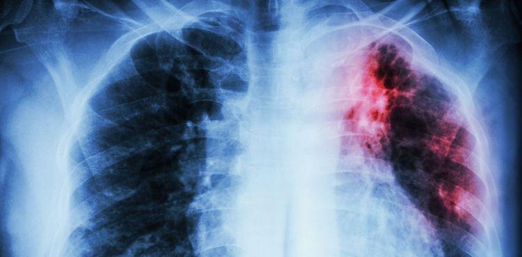 туберкулез тоже лечат с использованием этого растения.