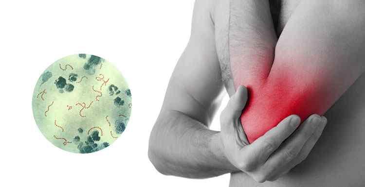 Резак поможет в лечении полиартрита