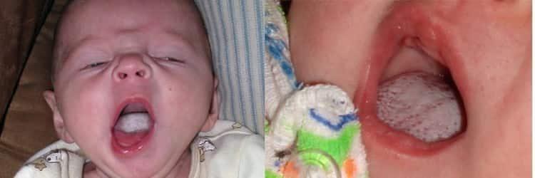 молочница у грудных детей во рту: лечение