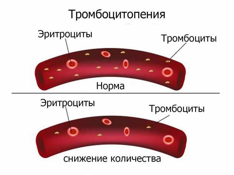 первая помощь при наружном и внутреннем кровотечении