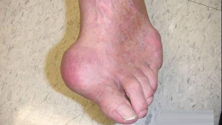 Очень часто от этого заболевания больше всего страдает большой палец ноги.