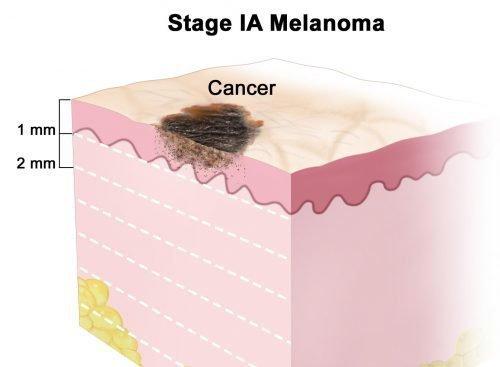 Первая стадия меланомы