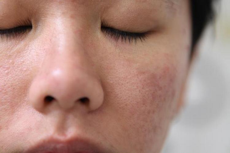 регулярное применение масок поможет поддерживать кожу в красивом состоянии.