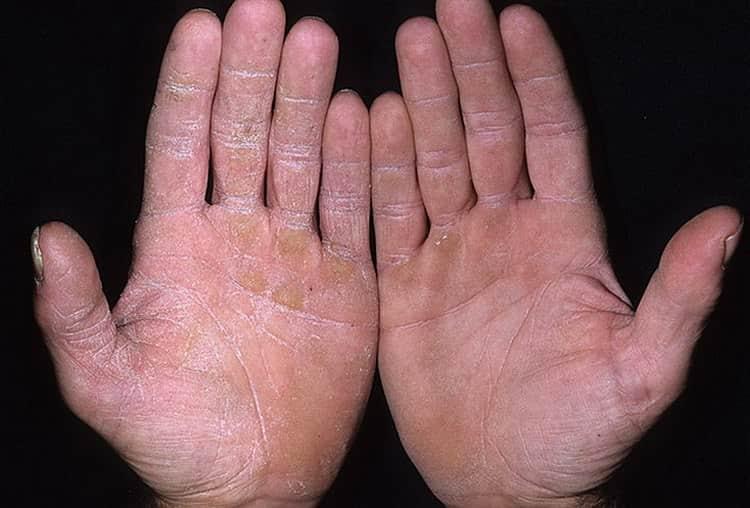 Володушка золотистая используется для лечения грибковых заболеваний кожи.