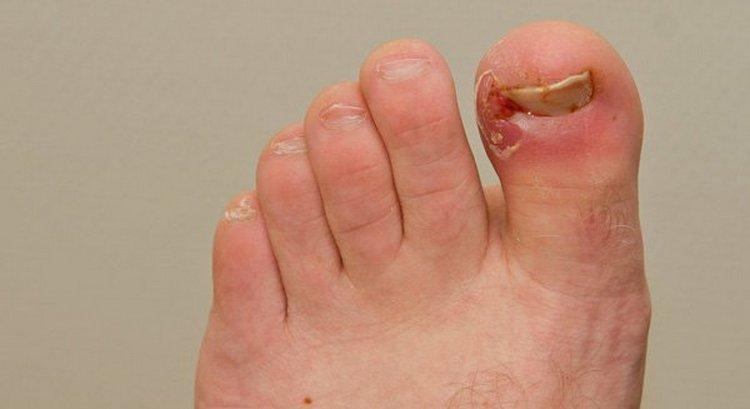 Для лечения вросшего ногтя на ноге в домашних условиях применяют примочки и ванночки.