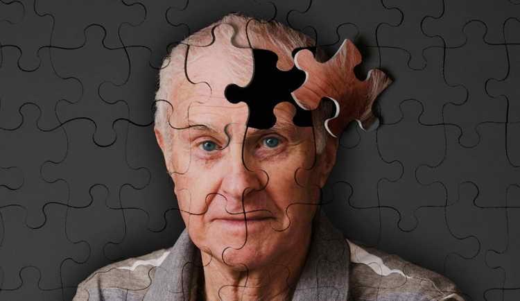 старческая деменция симптомы и признаки, деменция что это за болезнь