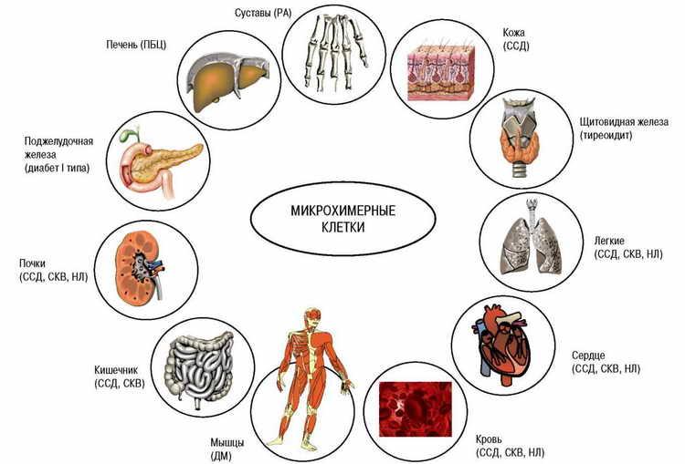 фурункулез причины и лечение