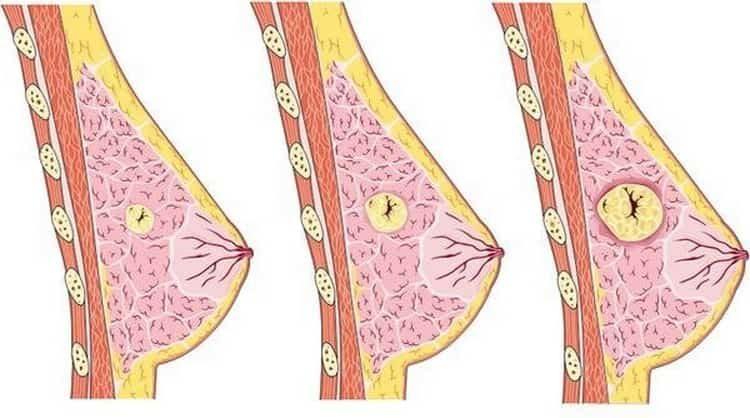фиброаденома молочной железы что это такое как лечить
