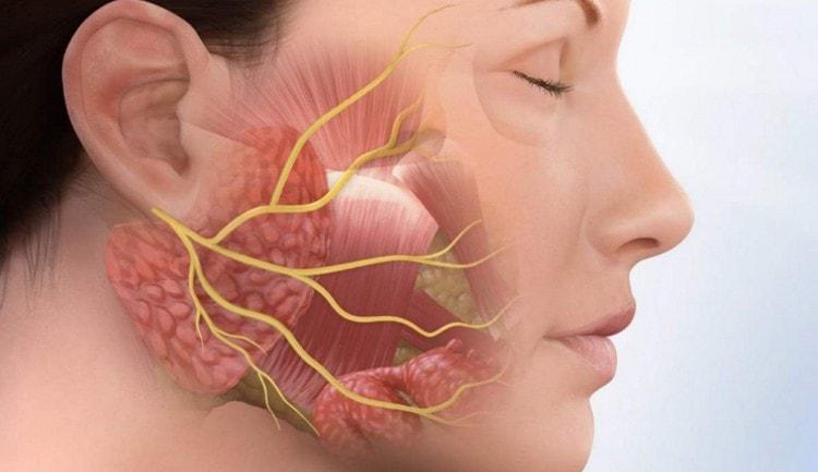 Поговорим о лечении неврита лицевого нерва.