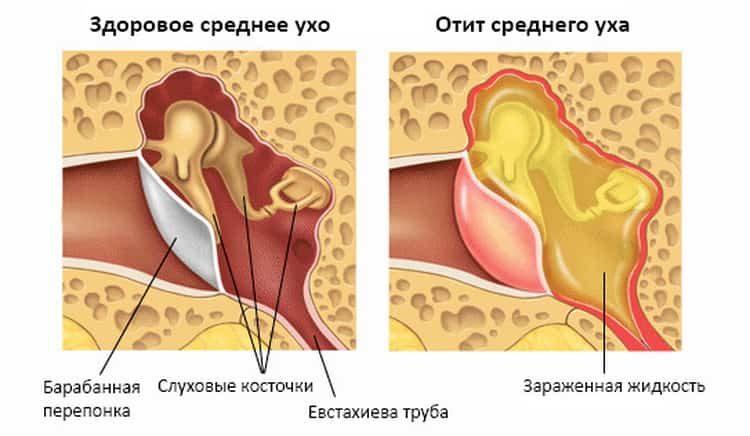 Боль в ухе у взрослых: причины, симптомы и лечение народными средствами в домашних условиях