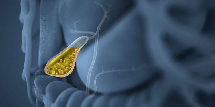 Препараты на основе этого растения можно использовать для профилактики желчекаменной болезни.