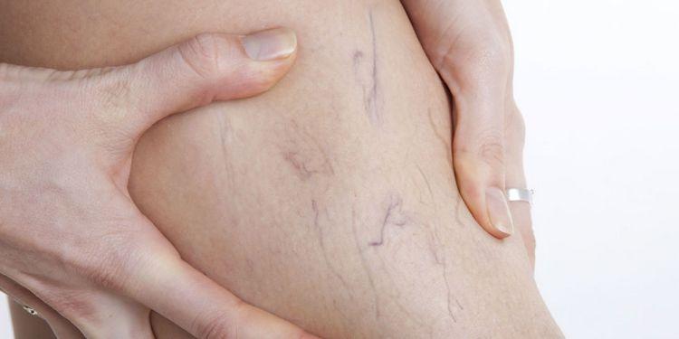 Лечебные свойства черемухи используют для укрепления капилляров.