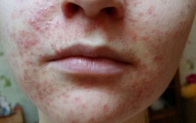 Нередко люди, зараженные хеликобактер, сталкиваются с проблемой аллергической сыпи.