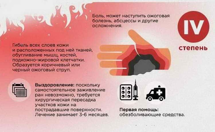 виды ожогов и первая помощь