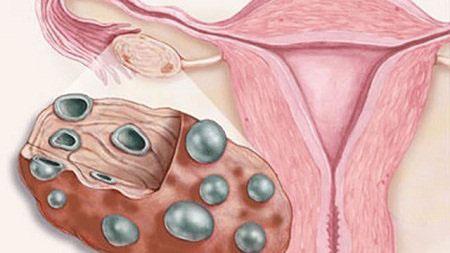 Изменение яичника