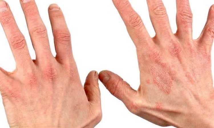 Лекарственное растение вероника используется также для приготовления мазей, чтобы лечить кожные заболевания.