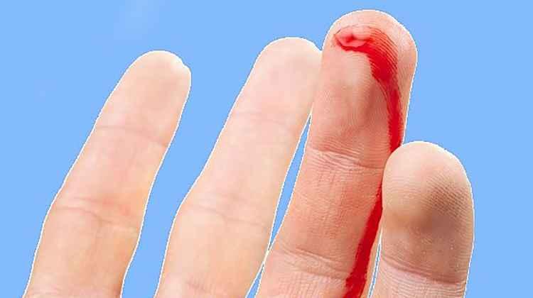 Кровотечение поможет остановить печеночница