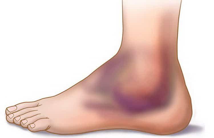 гематома на ноге после ушиба: лечение
