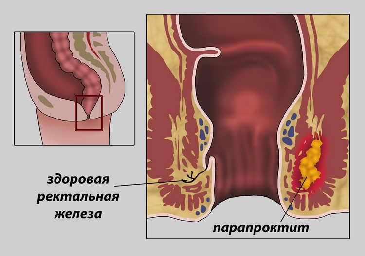признаки геморроя у женщин симптомы и лечение