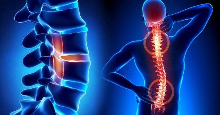 Упражнения для спины при сколиозе помогут исправить искривление.