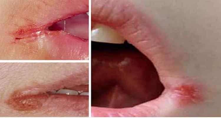 трещины в уголках губ^ причины