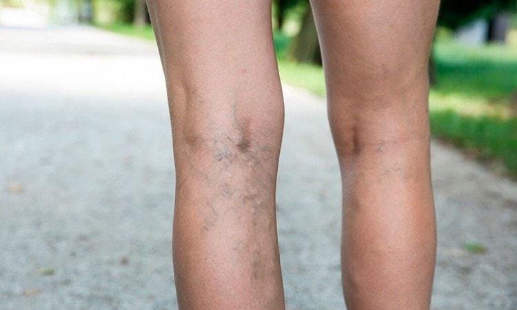 настои из коры дерева используются для лечения варикоза.