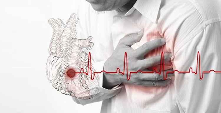 Рудбекия поможет предотвратить проблемы с сердцем