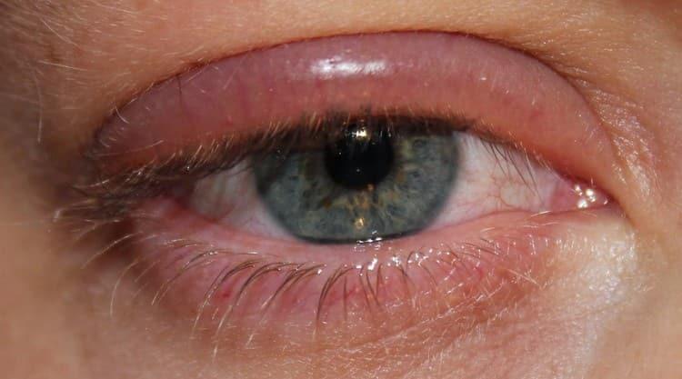 растение может вызвать аллергическую реакцию, в частности на глазах.
