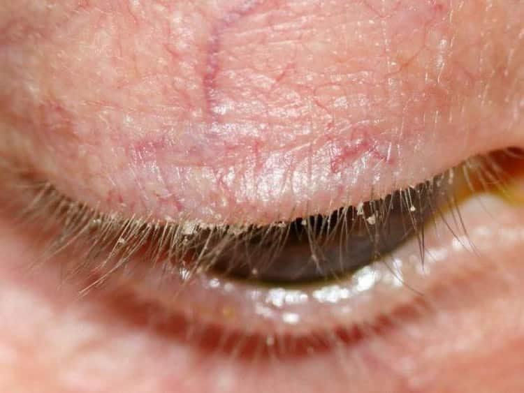 Демодекоз: причины, симптомы и лечение народными средствами в домашних условиях